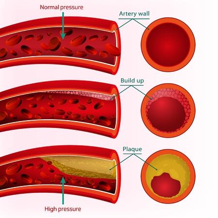 high blood pressure.jpg